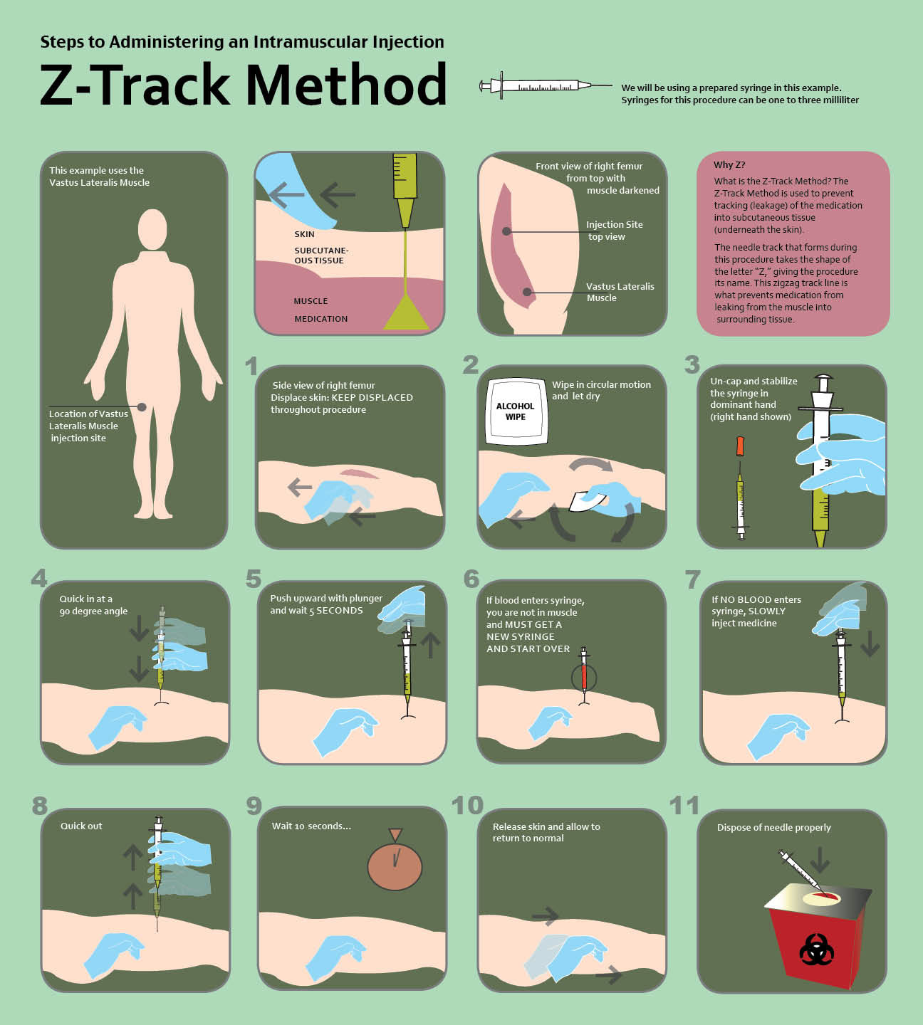 Osf College Of Nursing >> Rebecca Janus - Z-Track Procedure